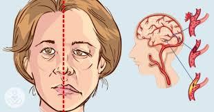 Những dấu hiệu nhận biết đột quỵ và cách phòng tránh   Sở Y tế Nam Định